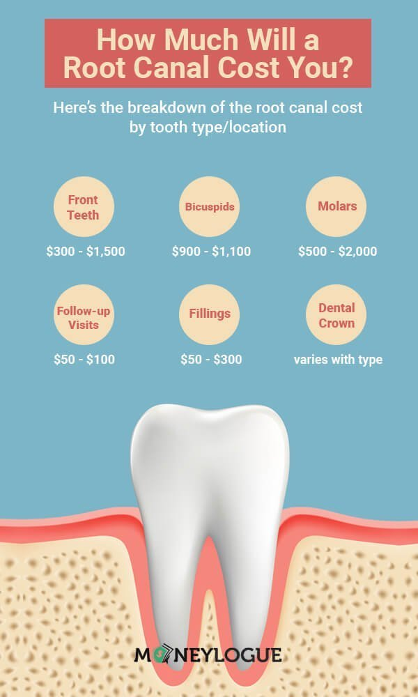 Root Canal Cost Breakdown Infographic
